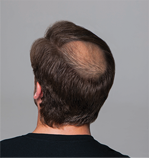 2-hairloss-thumb-2-ahl